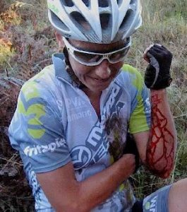 Cyclist with bleeding arm