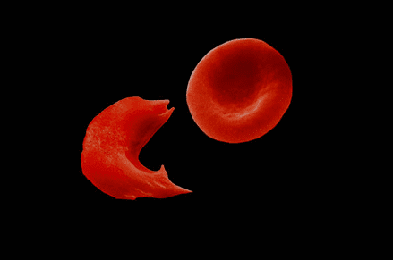 Sickle Cell Anemia