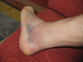 Why are ankle injuries so common in sport?
