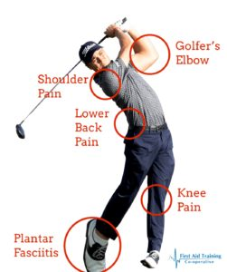 An illustration of a golfer with typical golf injury sites marked