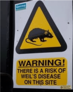 Weil's Disease Warning Sign