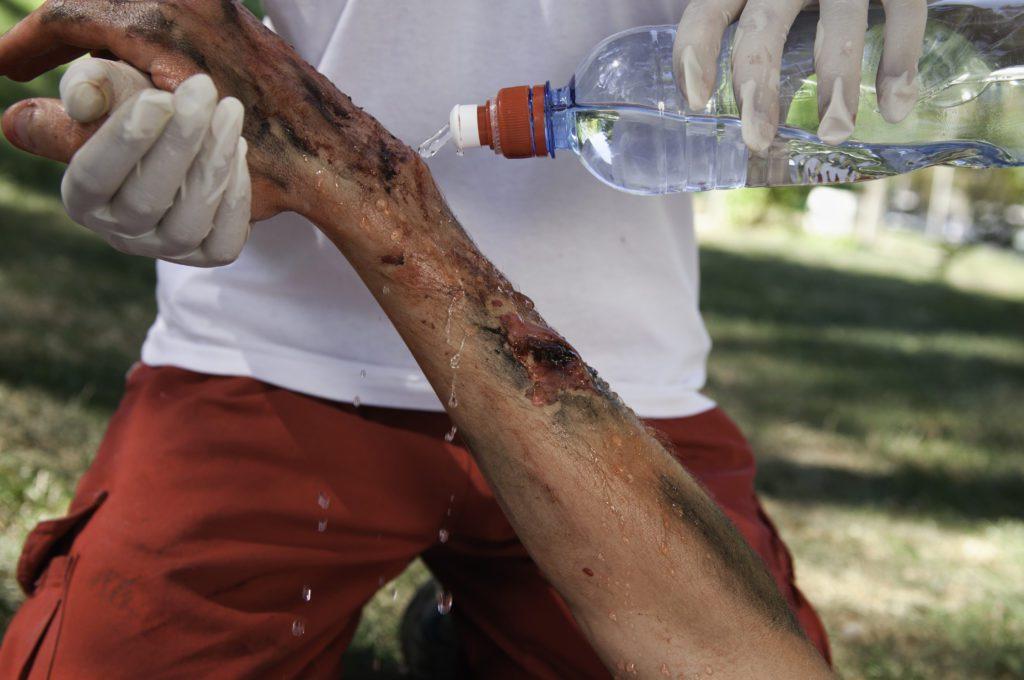 burned arm