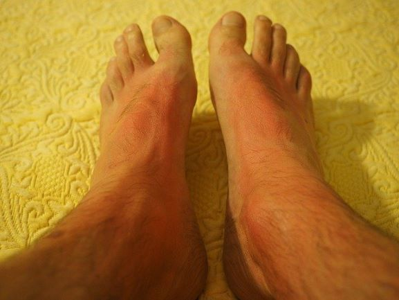 Feet with obvious sunburn marks showing the shadow of sandals.