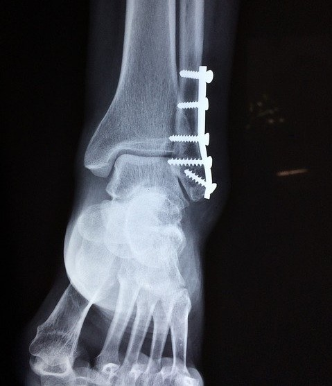 An x-ray of a broken ankle that has been screwed back together