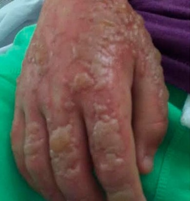 A hand with severe blistering and burns from the sap of Giant Hogweed